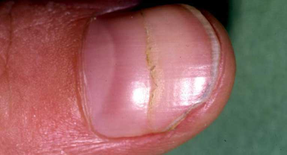 How the nail appears: The lunula is red.