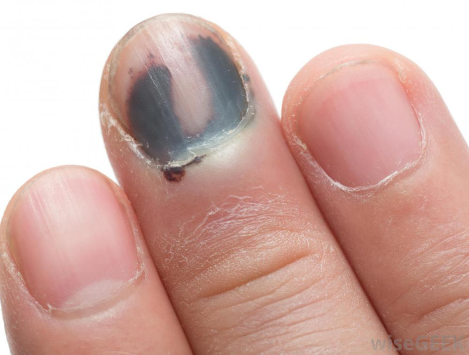 Do you know these nail disorders and abnormalities? – J. Soltman ...